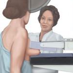 Mammografia dobro, czy zło konieczne…..