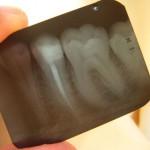 Rak: Zabójcze leczenie kanałowe zębów